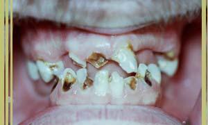 The Digestive System | Methamphetamine