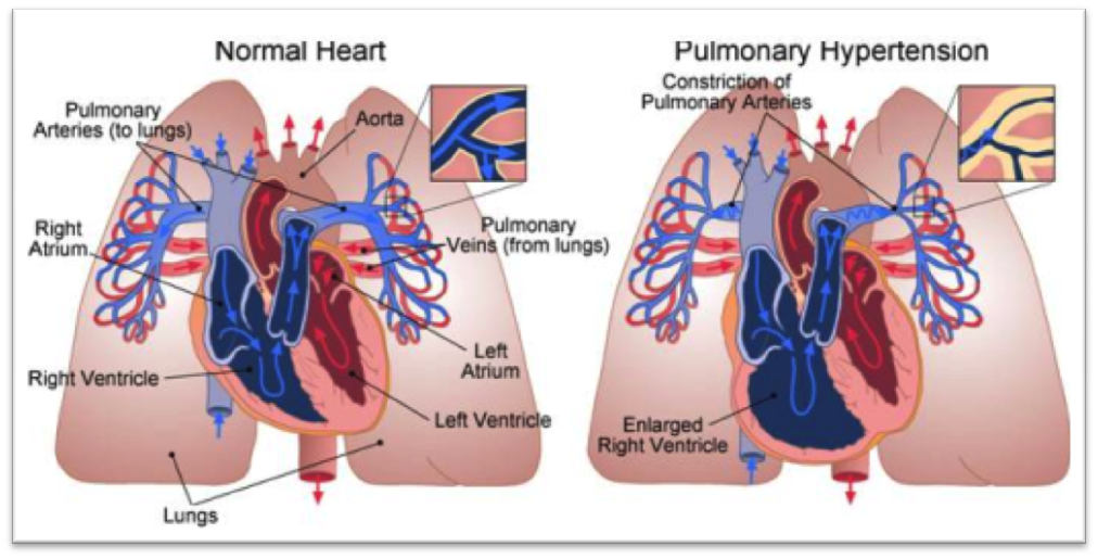 The Pulmonary System | Methamphetamine